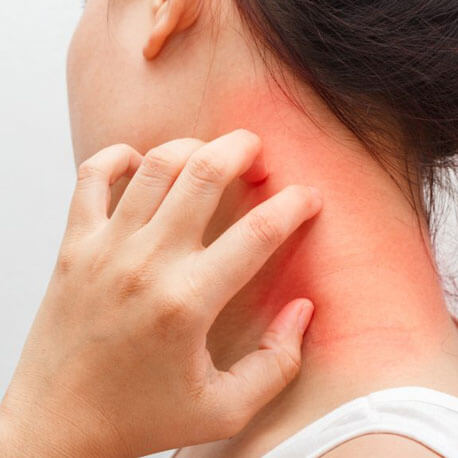 About Itching - We Cure Itching By Naturopathy Treatment